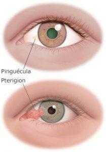 carnosidad de los ojos pterigion-pinguecula